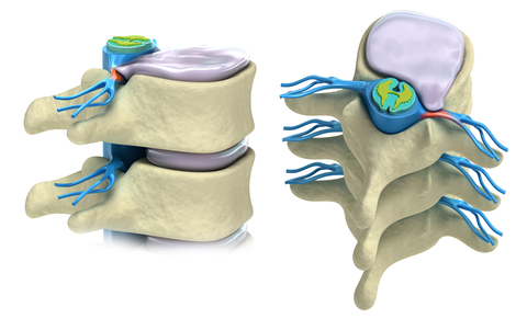 Disc Herniation Workers' Compensation